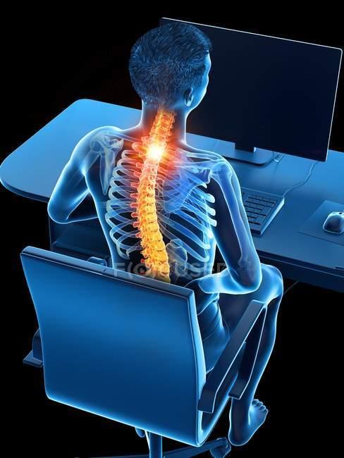 Офісний працівник з болі в спині з високим кутом зору, Концептуальна ілюстрація. — стокове фото