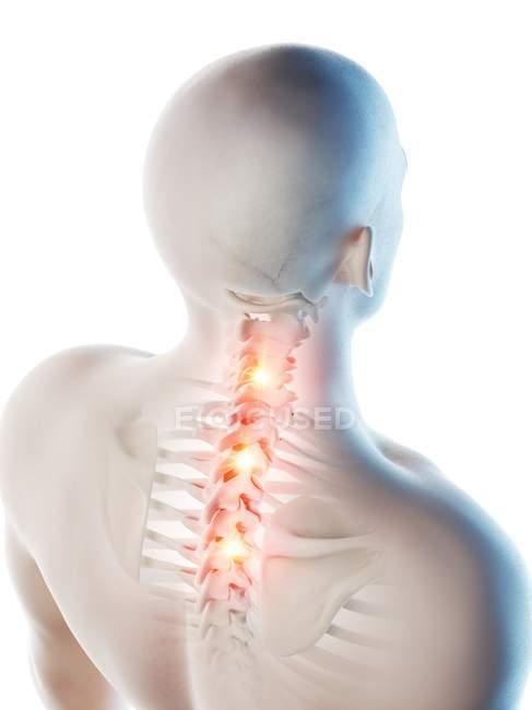 Концептуальная цифровая иллюстрация боли в верхней части спины в прозрачном человеческом силуэте. — стоковое фото