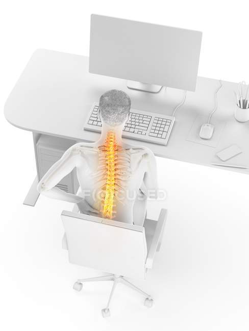 Office worker with back pain due to sitting in high angle view, digital illustration. — Stock Photo