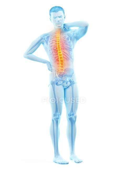 Corpo maschile con mal di schiena su sfondo bianco, illustrazione concettuale . — Foto stock