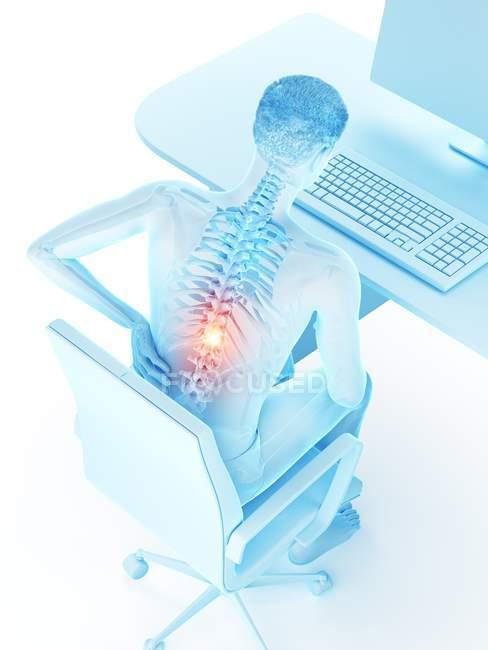Trabajador de oficina con dolor de espalda debido a sentarse en vista de ángulo alto, ilustración digital . - foto de stock