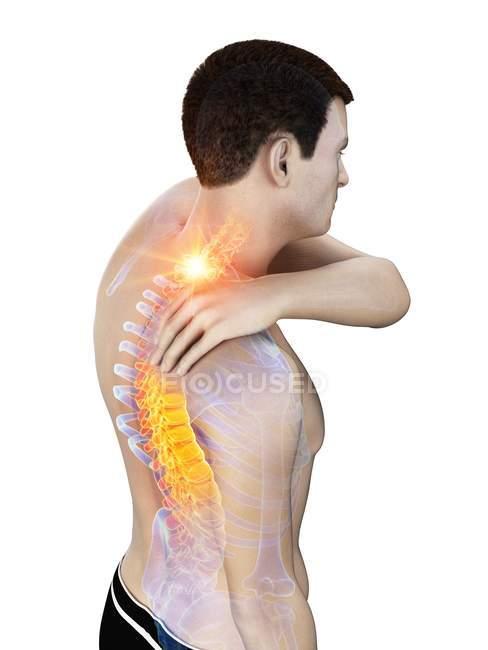 Silueta del hombre con dolor de cuello, ilustración conceptual . - foto de stock