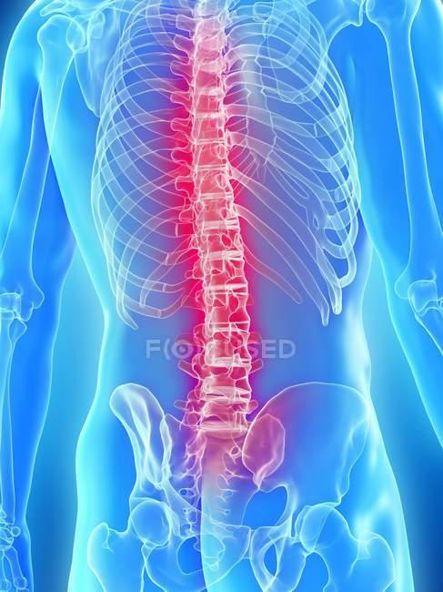 Концептуальная цифровая иллюстрация боли в спине в прозрачном человеческом силуэте. — стоковое фото