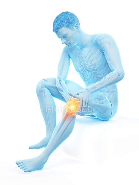Silueta del hombre sentado con dolor de rodilla, ilustración conceptual . - foto de stock