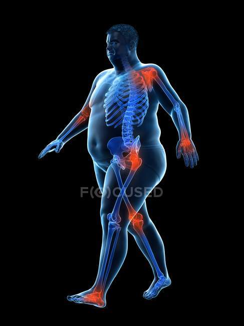 Silueta del hombre obeso que camina que tiene dolor en las articulaciones, ilustración por computadora . - foto de stock