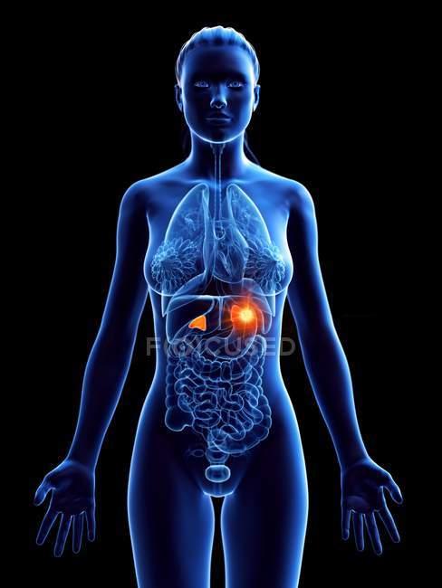 Cuerpo femenino con cáncer de glándulas suprarrenales, ilustración por computadora . - foto de stock