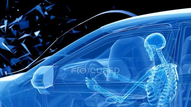 X-ray illustration of risk of injury while head-on car crash, digital artwork. — Stock Photo