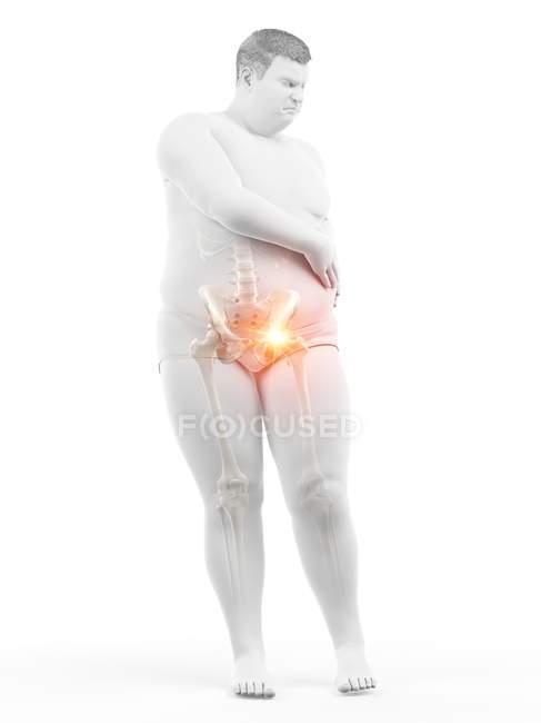 Silueta de hombre obeso con dolor de cadera, ilustración digital . - foto de stock