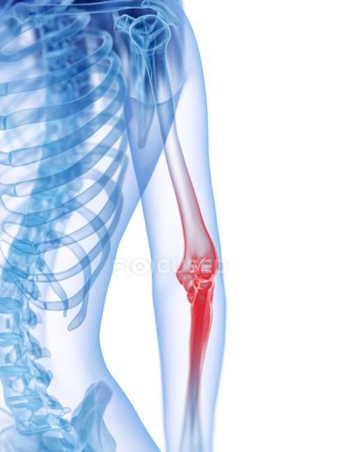 Silueta humana abstracta con dolor de codo, ilustración conceptual . - foto de stock