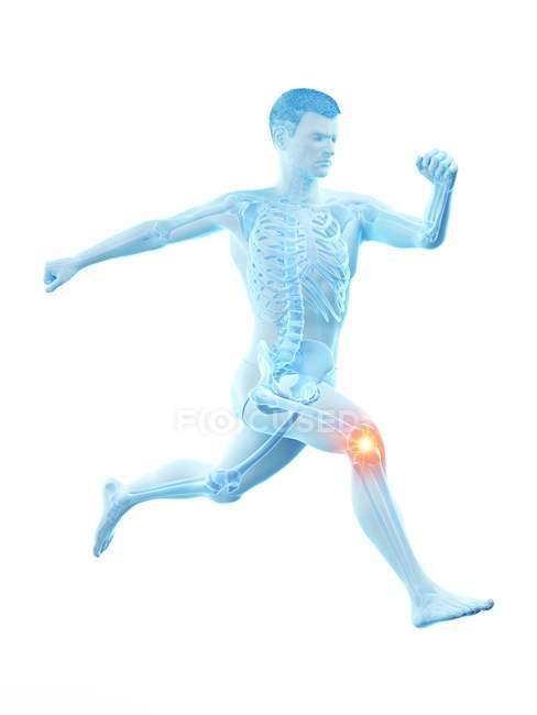 Silueta de corredor con dolor de rodilla, ilustración digital . - foto de stock