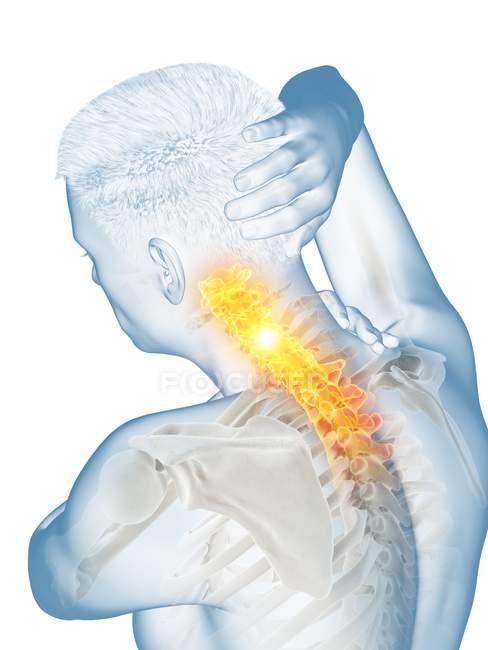Чоловіче тіло з видимим болем шиї, концептуальний приклад. — стокове фото