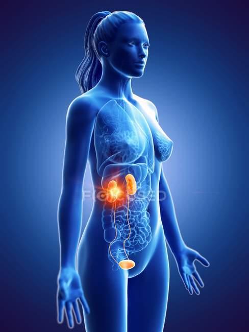 Silueta de mujer con cáncer de riñón, ilustración digital conceptual . - foto de stock