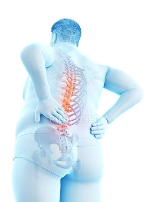 Corpo masculino obeso com dor traseira na opinião de baixo ângulo, ilustração digital. — Fotografia de Stock