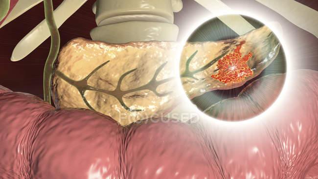 Ilustración digital que muestra crecimiento maligno en el páncreas mientras el cáncer de páncreas . - foto de stock