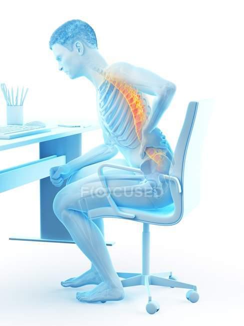 Assis au bureau silhouette de travailleur de bureau avec mal de dos, illustration conceptuelle . — Photo de stock