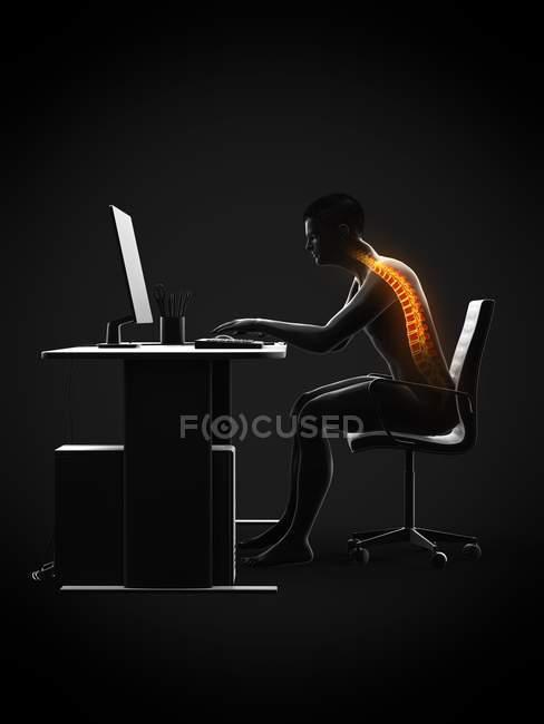 Dolore alla schiena del lavoratore d'ufficio seduto e alla scrivania, illustrazione concettuale . — Foto stock