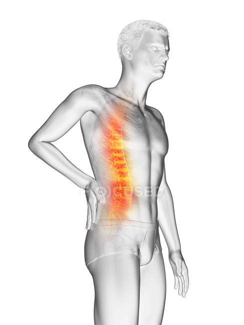 Vista lateral del cuerpo masculino con dolor de espalda sobre fondo blanco, ilustración conceptual . - foto de stock
