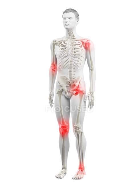 Cuerpo humano con puntos de dolor articular, ilustración conceptual . - foto de stock