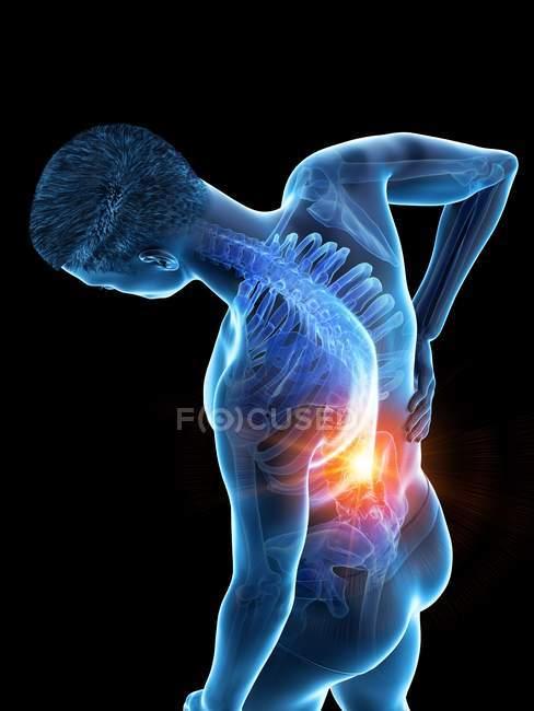 Vista de ángulo alto del cuerpo masculino de flexión con dolor de espalda, ilustración conceptual . - foto de stock