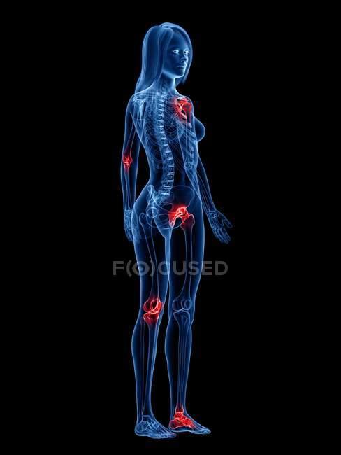 Articulaciones dolorosas en el cuerpo femenino, ilustración conceptual . - foto de stock