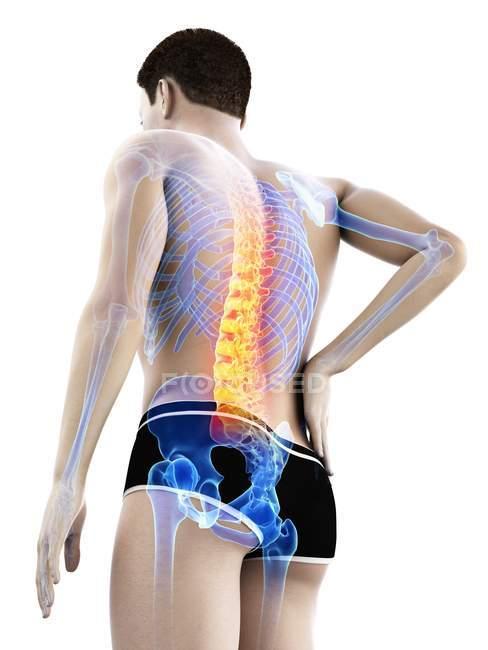 Чоловіче тіло з болем у попереку в режимі низького кута, Концептуальна ілюстрація. — стокове фото