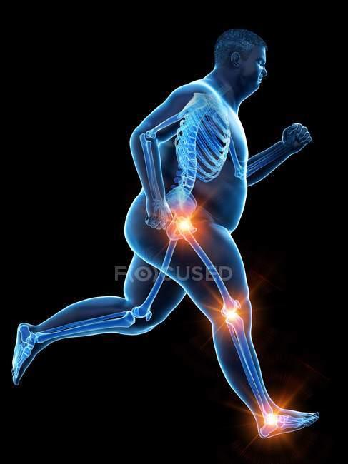 Silueta de hombre obeso corriendo con dolor en las articulaciones, ilustración por computadora . - foto de stock