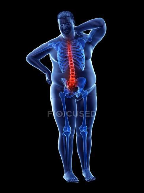 Silueta de longitud completa masculina obesa con dolor de espalda, ilustración digital . - foto de stock