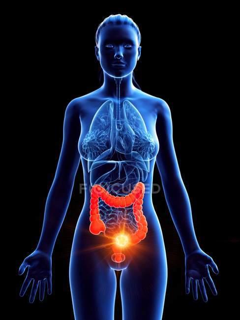 Silueta femenina con cáncer en el intestino grueso, ilustración digital . - foto de stock