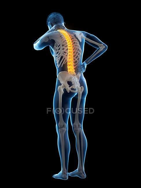 Vista posteriore del corpo maschile a tutta lunghezza con mal di schiena, illustrazione concettuale . — Foto stock