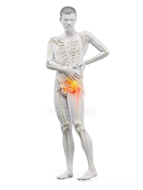 Silueta del hombre con dolor de cadera, ilustración digital . - foto de stock