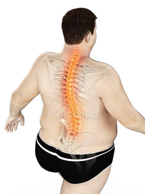 Corpo masculino obeso com dor nas costas em visão de alto ângulo, ilustração digital . — Fotografia de Stock