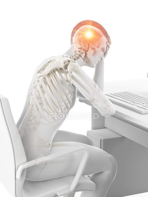 Conceptual illustration of abstract office worker having headache at workplace. — Stock Photo