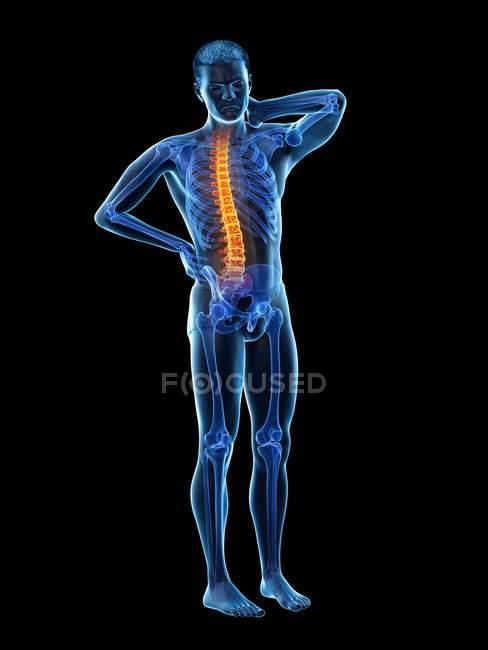 Vista frontal del cuerpo masculino con dolor de espalda, ilustración conceptual . - foto de stock