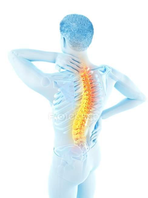 Silueta masculina con dolor de espalda en vista de ángulo alto, ilustración conceptual . - foto de stock