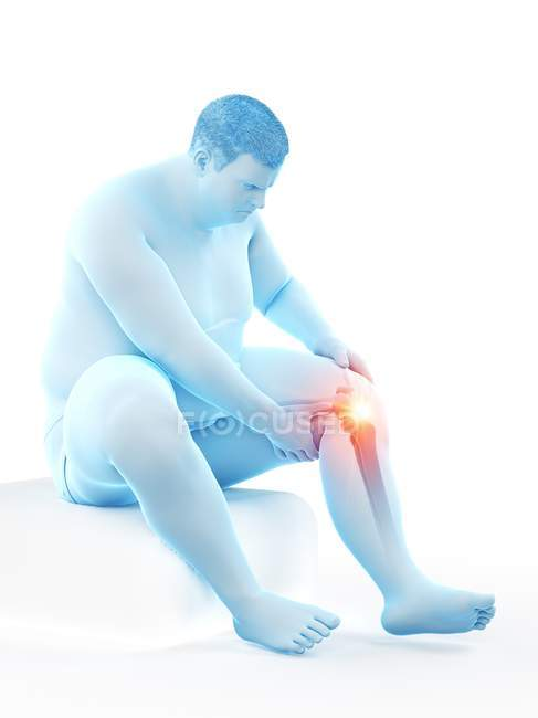 Silueta del hombre obeso sentado que tiene dolor de rodilla, ilustración por computadora . - foto de stock