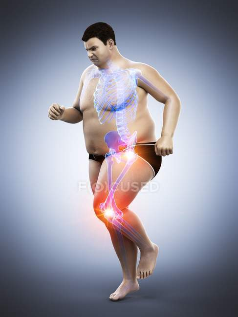 Silhouette of running obese man with joint pain, computer illustration.. - foto de stock