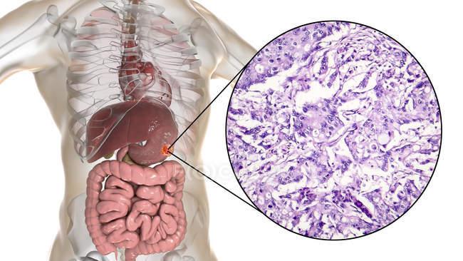 Adenocarcinoma mucinoso del estómago humano, ilustración por computadora y micrografía ligera . - foto de stock