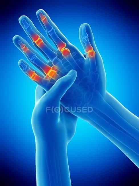 Абстрактувати людські руки пальцем болю, концептуальний приклад. — стокове фото