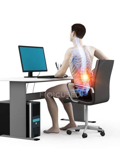 Oficinista silueta sentado en el escritorio con dolor de espalda, ilustración conceptual . - foto de stock