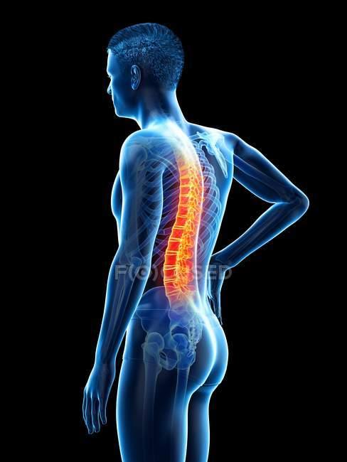 Vista lateral del cuerpo masculino con dolor de espalda sobre fondo negro, ilustración conceptual . - foto de stock