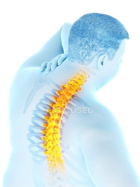 Primer plano del varón obeso con dolor de espalda, ilustración digital . - foto de stock