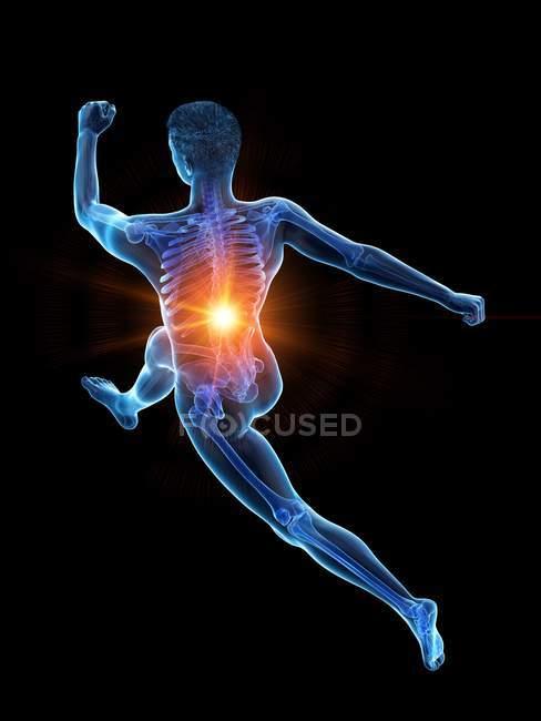 Silueta de corredor masculino con dolor de espalda en vista de ángulo alto, ilustración conceptual . - foto de stock