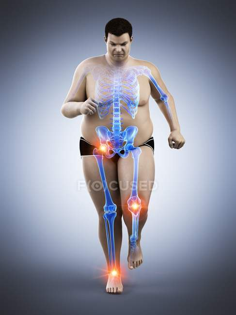 Obese runner with joint pain, computer illustration. — Stock Photo