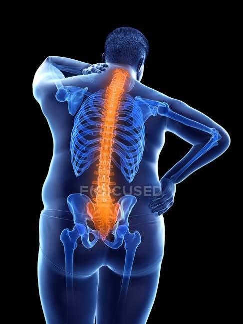 Ожиріння чоловіче тіло з болем у спині, цифрова ілюстрація. — стокове фото