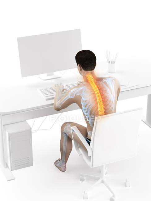 Back pain of office worker sitting and working at desk, conceptual illustration. — Stock Photo