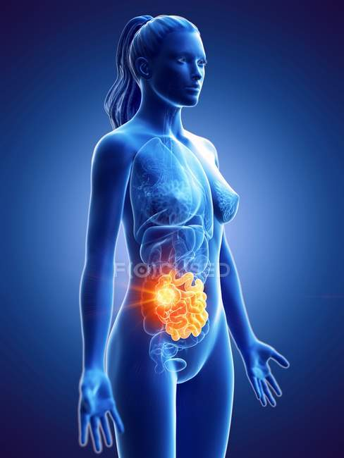 Silueta femenina con cáncer en el intestino delgado, ilustración digital . - foto de stock