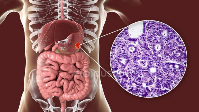Adenocarcinoma de estómago humano, ilustración por computadora y micrografía ligera . - foto de stock