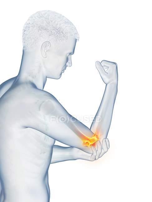 Cuerpo masculino abstracto con dolor de codo visible, ilustración conceptual . - foto de stock