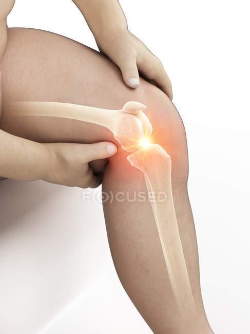 Hombre obeso con dolor de rodilla, ilustración conceptual . - foto de stock