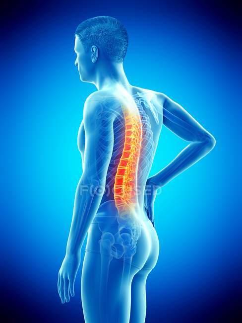 Vue de côté du corps masculin avec le mal de dos sur le fond bleu, illustration conceptuelle. — Photo de stock